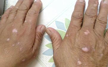 手上的白癜风早期症状有哪些